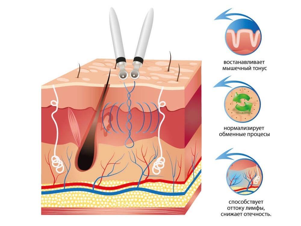 микротоковая терапия, как действуют микротоки