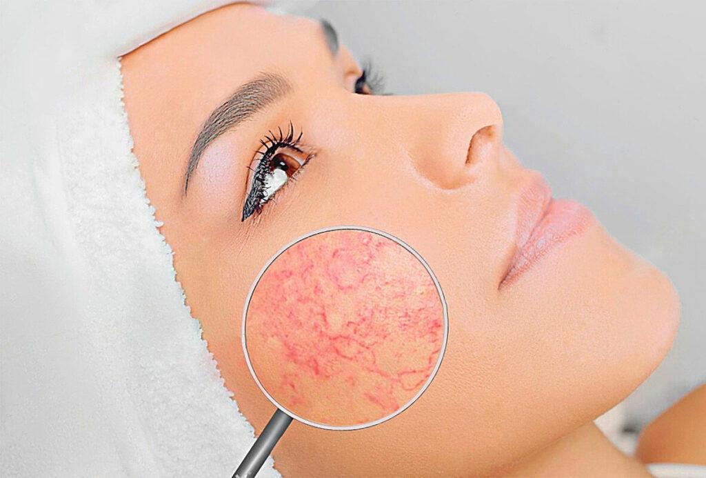 Купероз на лице: причины и эффективные методы профилактики
