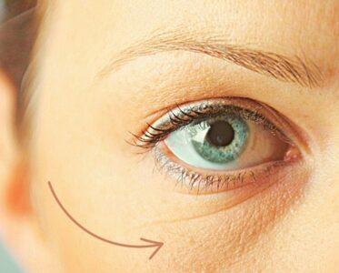 Малярные мешки под глазами: можно ли убрать без операции?